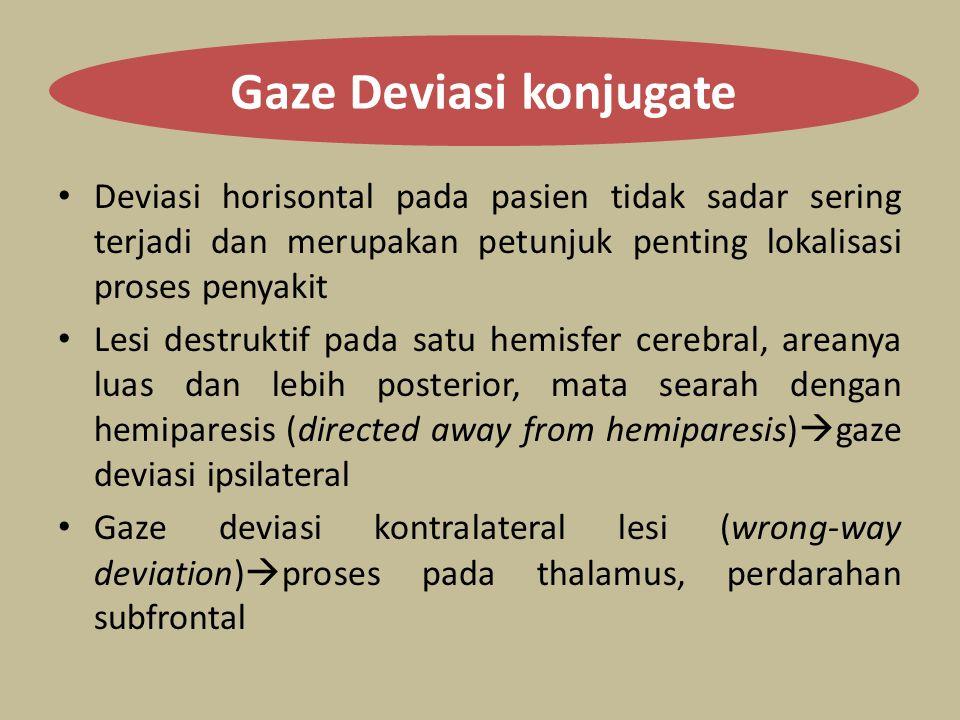 Gaze Deviasi konjugate