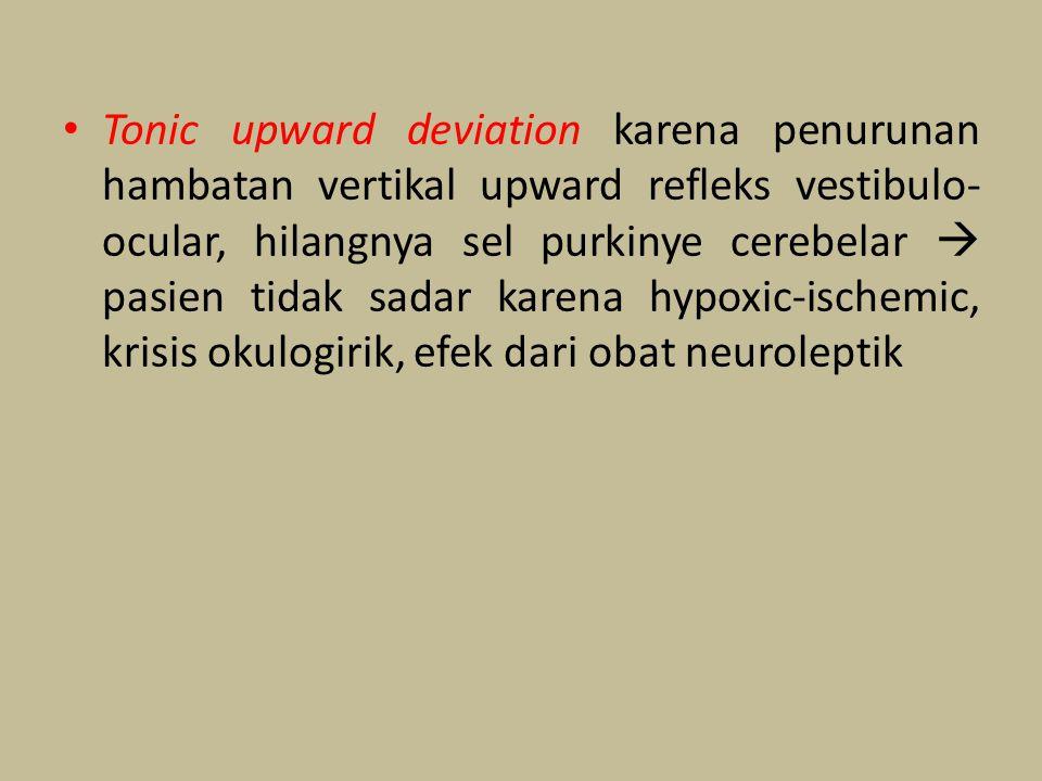 Tonic upward deviation karena penurunan hambatan vertikal upward refleks vestibulo-ocular, hilangnya sel purkinye cerebelar  pasien tidak sadar karena hypoxic-ischemic, krisis okulogirik, efek dari obat neuroleptik