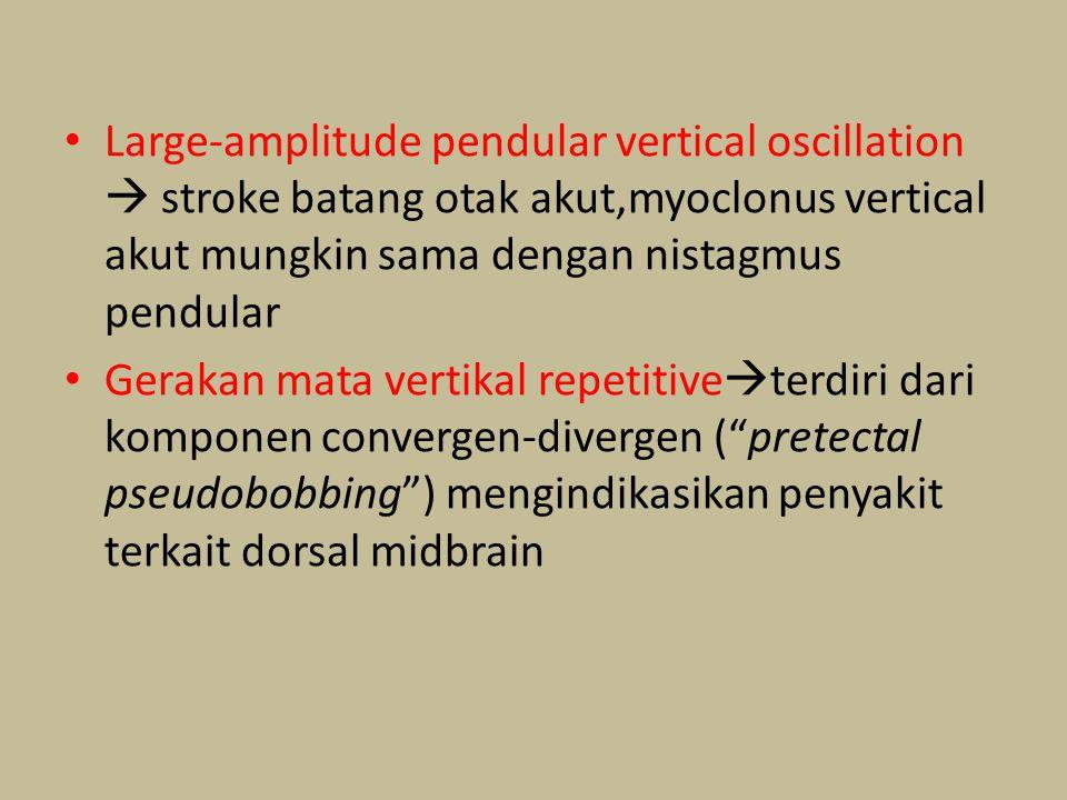 Large-amplitude pendular vertical oscillation  stroke batang otak akut,myoclonus vertical akut mungkin sama dengan nistagmus pendular
