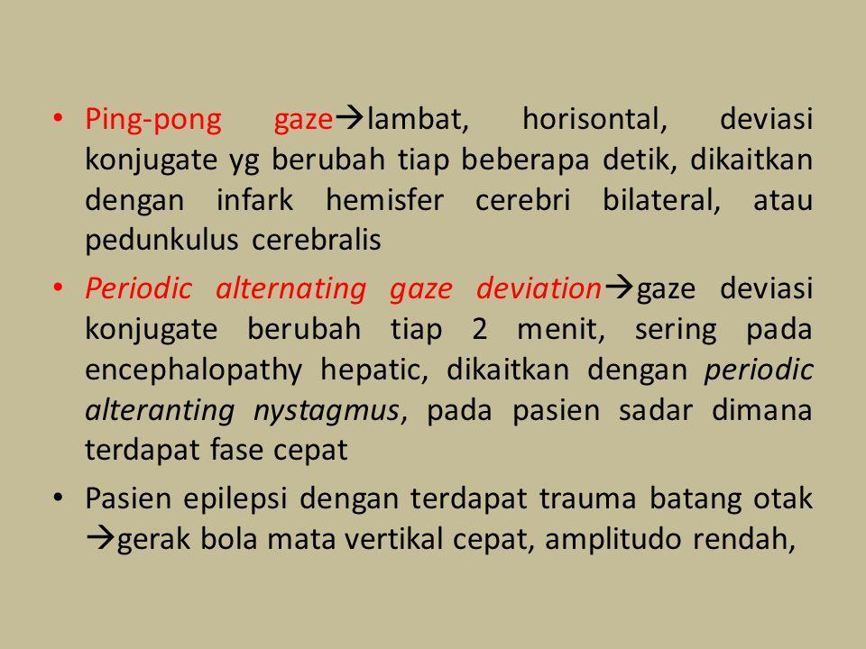 Ping-pong gazelambat, horisontal, deviasi konjugate yg berubah tiap beberapa detik, dikaitkan dengan infark hemisfer cerebri bilateral, atau pedunkulus cerebralis