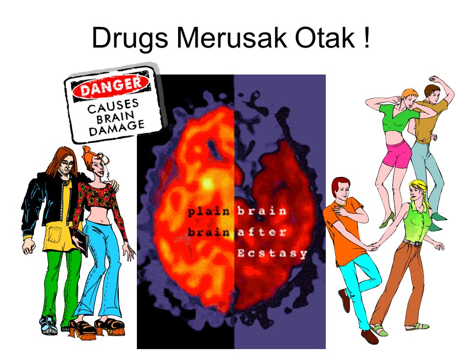 Drugs Merusak Otak !