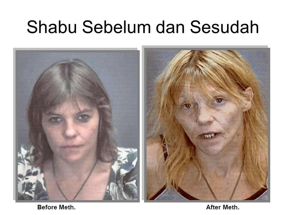 Shabu Sebelum dan Sesudah