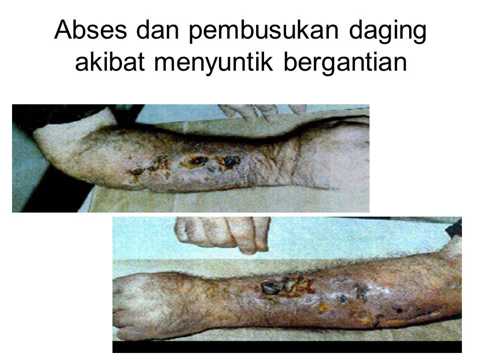 Abses dan pembusukan daging akibat menyuntik bergantian
