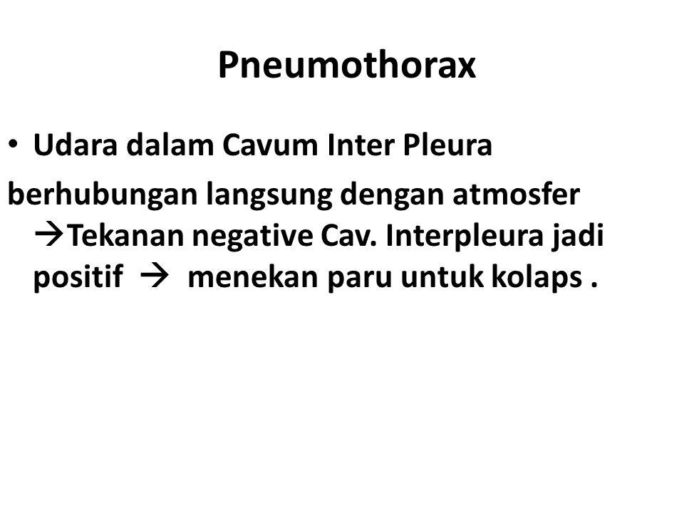 Pneumothorax Udara dalam Cavum Inter Pleura