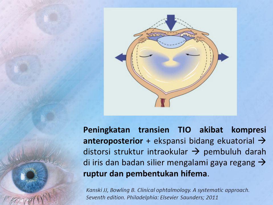 Peningkatan transien TIO akibat kompresi anteroposterior + ekspansi bidang ekuatorial  distorsi struktur intraokular  pembuluh darah di iris dan badan silier mengalami gaya regang  ruptur dan pembentukan hifema.