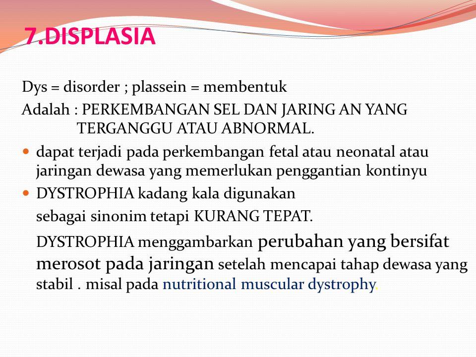 7.DISPLASIA Dys = disorder ; plassein = membentuk