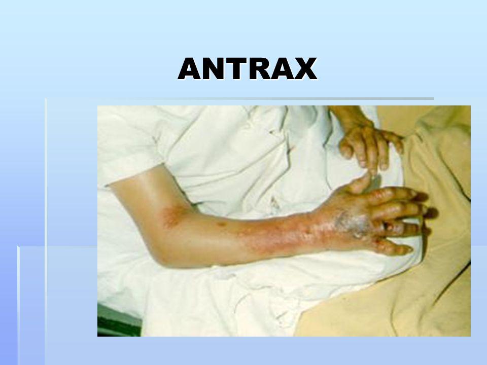 ANTRAX 23