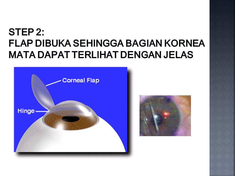Step 2: Flap dibuka sehingga bagian kornea mata dapat terlihat dengan jelas