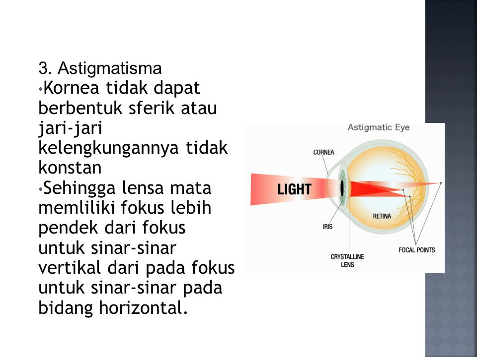 3. Astigmatisma Kornea tidak dapat berbentuk sferik atau jari-jari kelengkungannya tidak konstan.