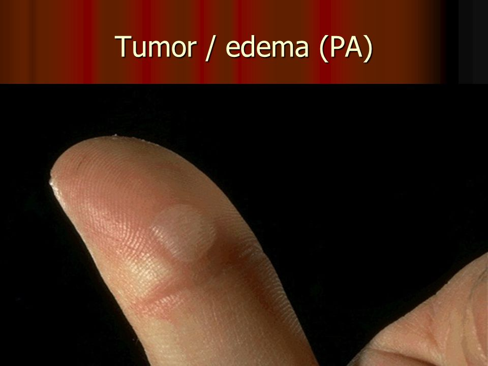 Tumor / edema (PA)