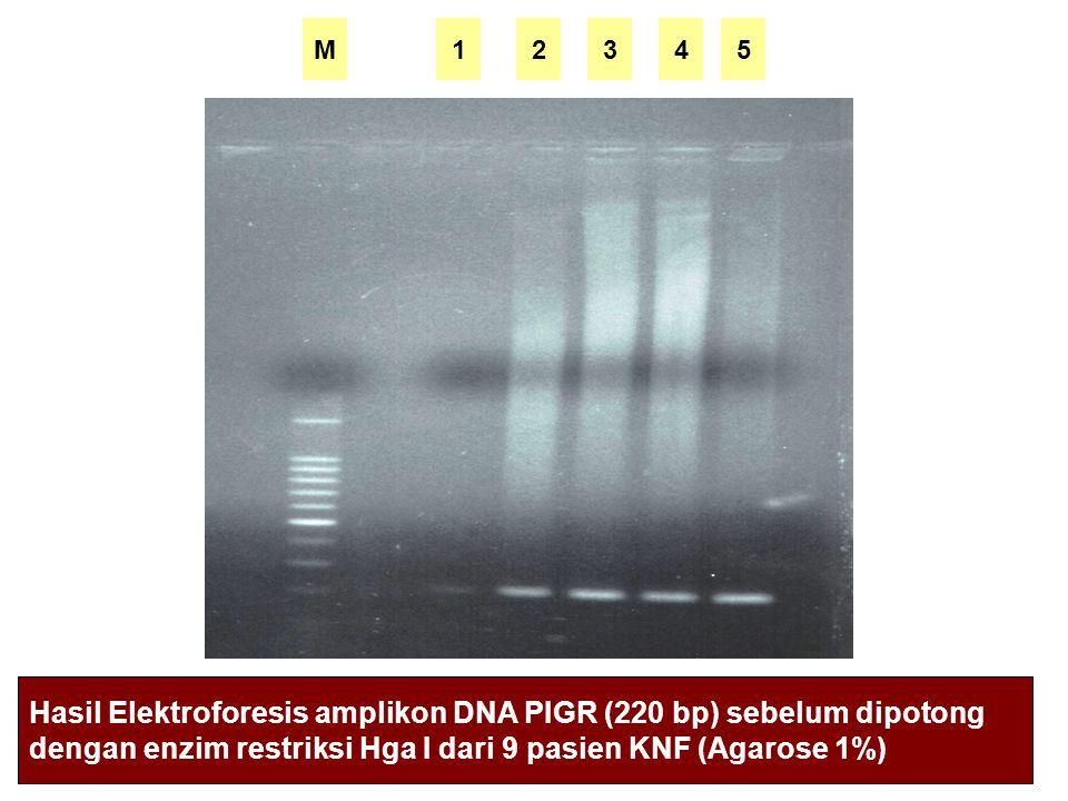 Hasil Elektroforesis amplikon DNA PIGR (220 bp) sebelum dipotong