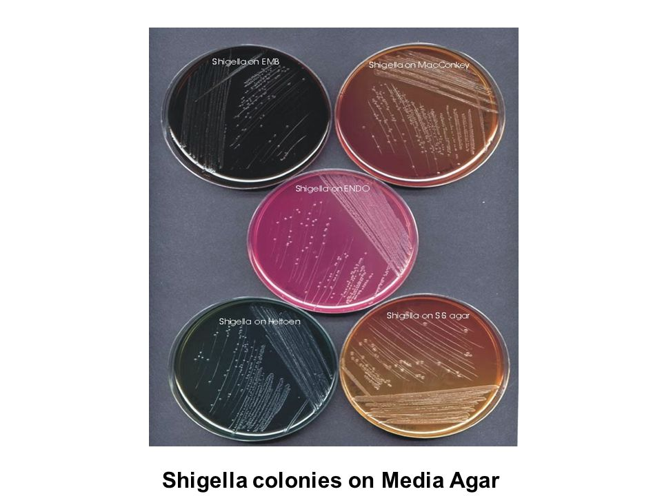 Shigella colonies on Media Agar