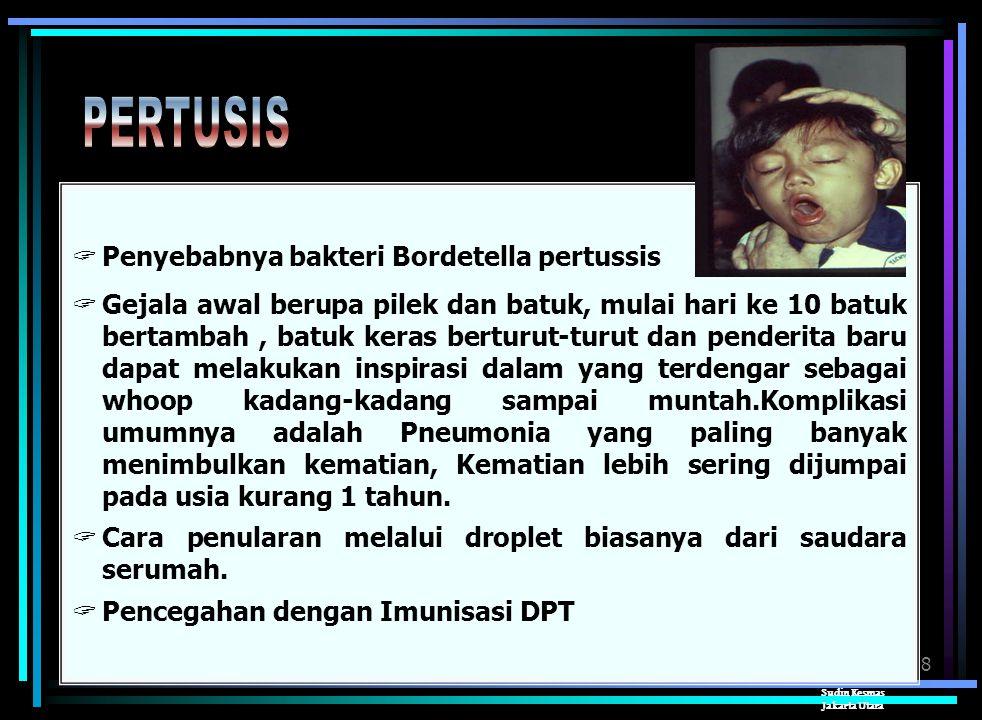PERTUSIS Penyebabnya bakteri Bordetella pertussis