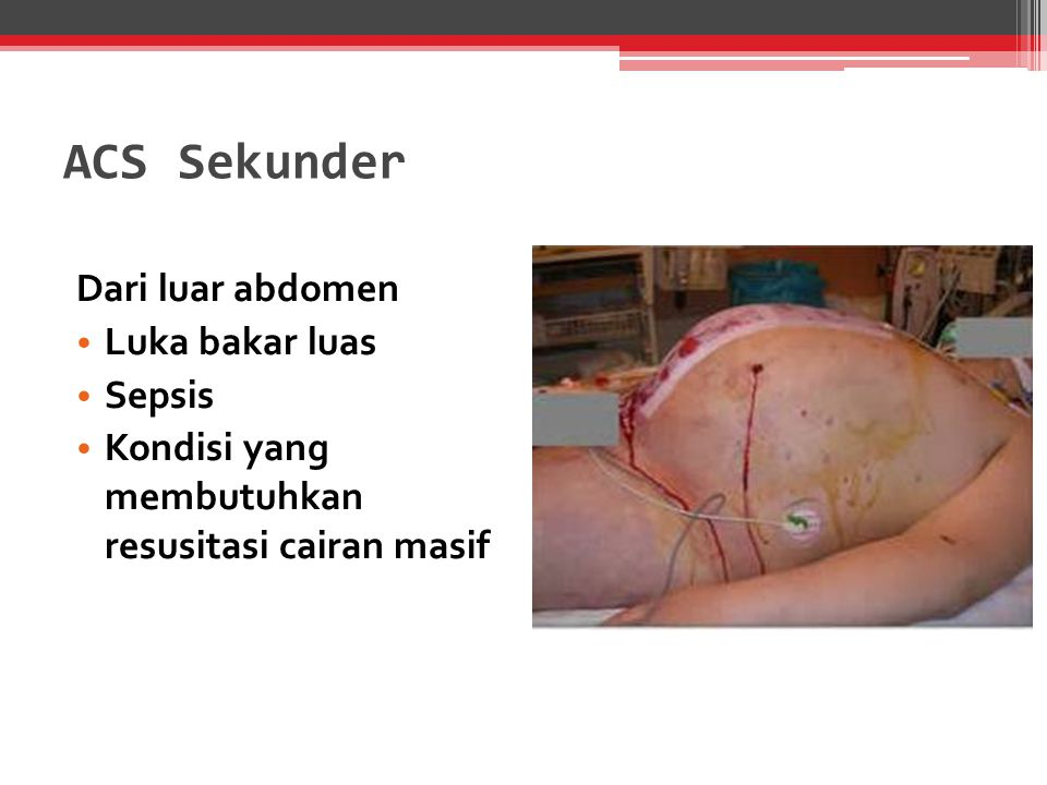 ACS Sekunder Dari luar abdomen Luka bakar luas Sepsis