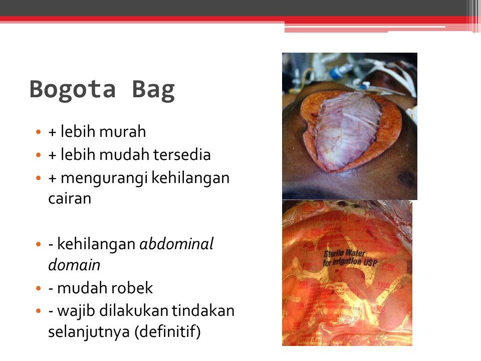 Bogota Bag + lebih murah + lebih mudah tersedia