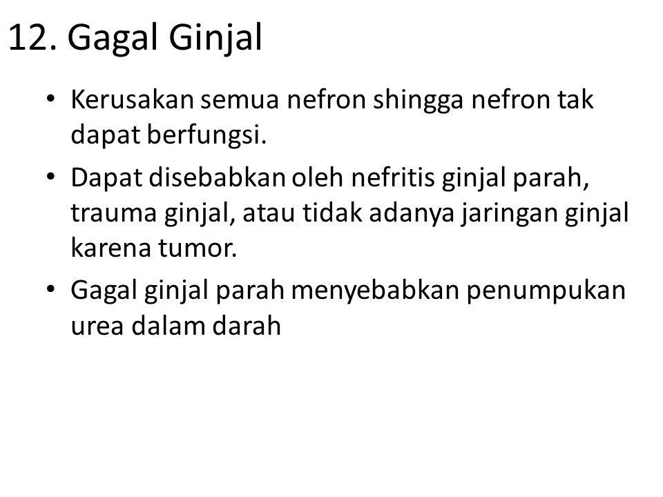 12. Gagal Ginjal Kerusakan semua nefron shingga nefron tak dapat berfungsi.