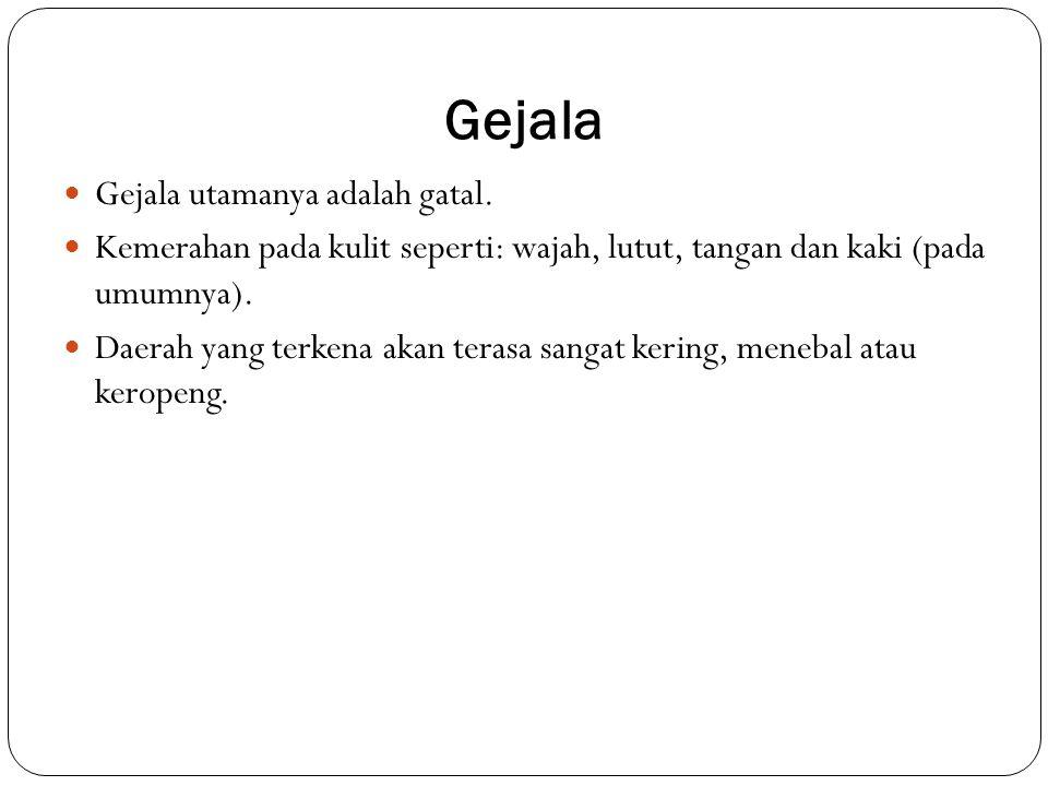 Gejala Gejala utamanya adalah gatal.