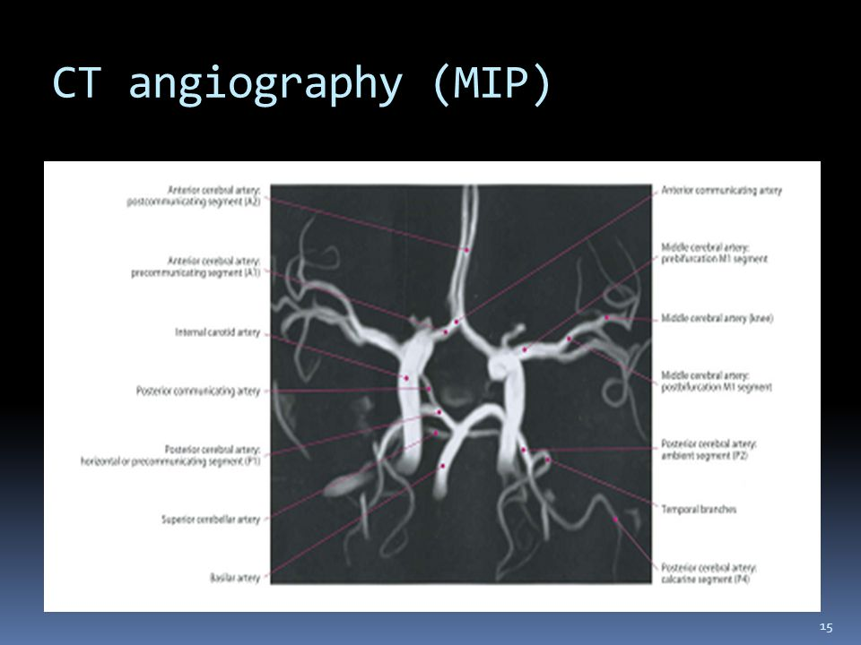 CT angiography (MIP)