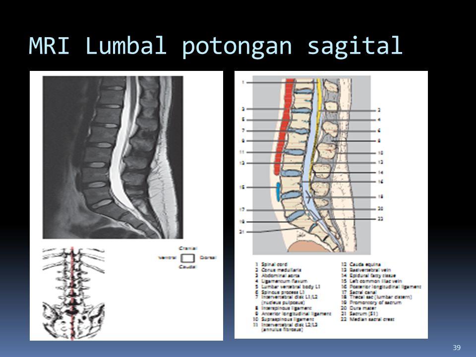 MRI Lumbal potongan sagital