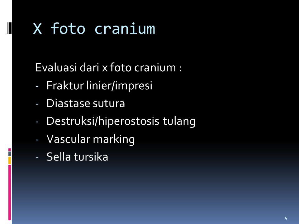X foto cranium Evaluasi dari x foto cranium : Fraktur linier/impresi