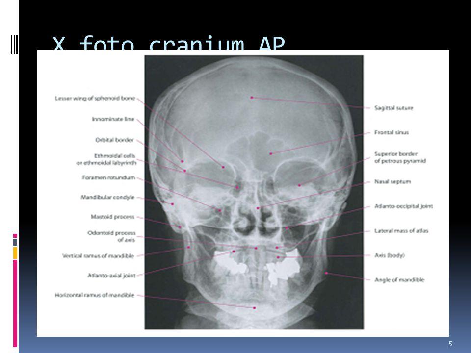 X foto cranium AP