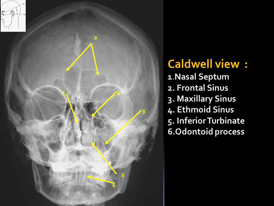 Caldwell view : 1.Nasal Septum 2. Frontal Sinus 3. Maxillary Sinus