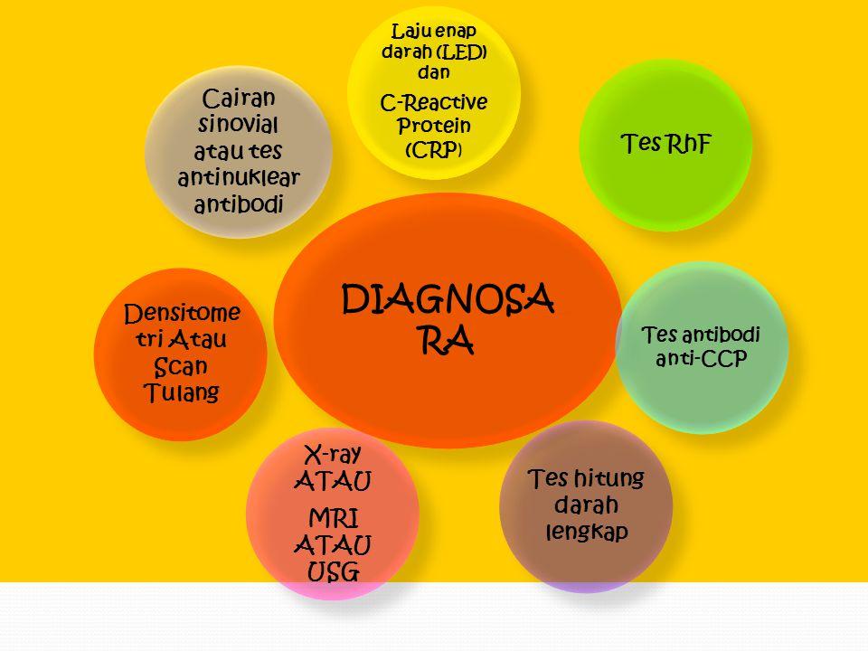 DIAGNOSA RA Cairan sinovial atau tes antinuklear antibodi