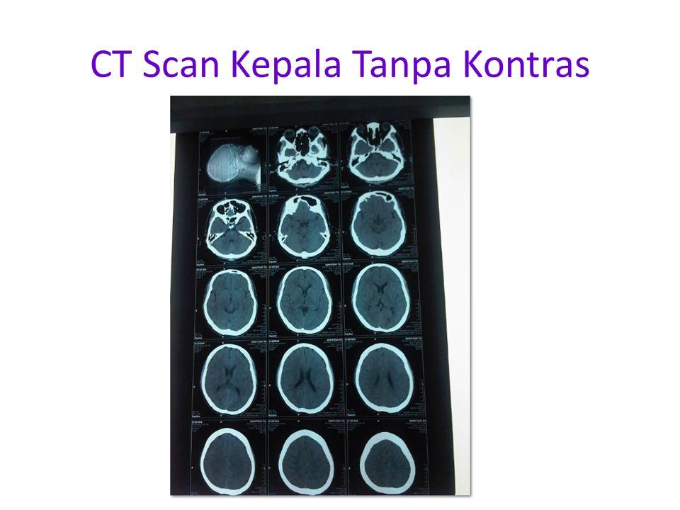 CT Scan Kepala Tanpa Kontras