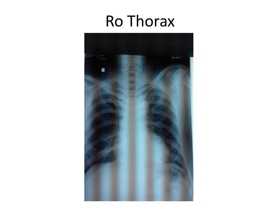 Ro Thorax