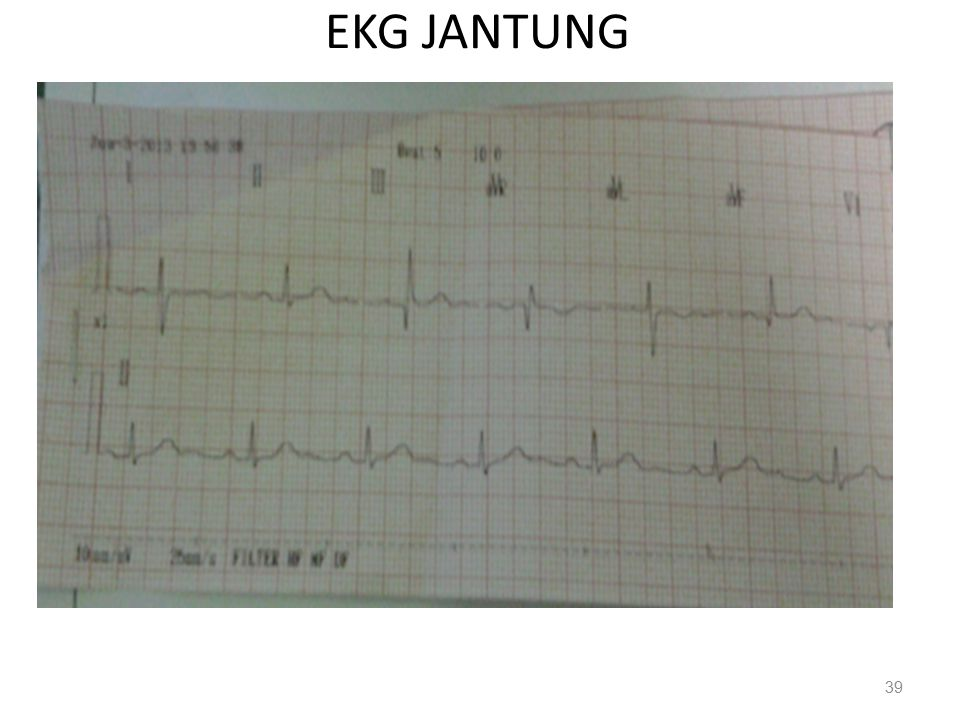 EKG JANTUNG