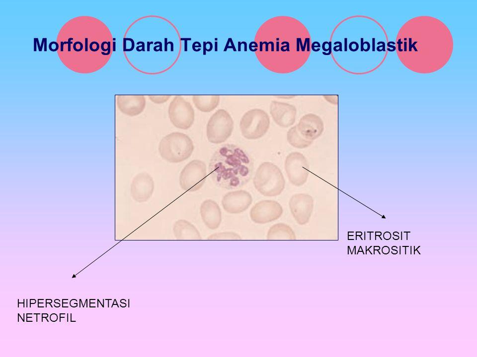 Morfologi Darah Tepi Anemia Megaloblastik