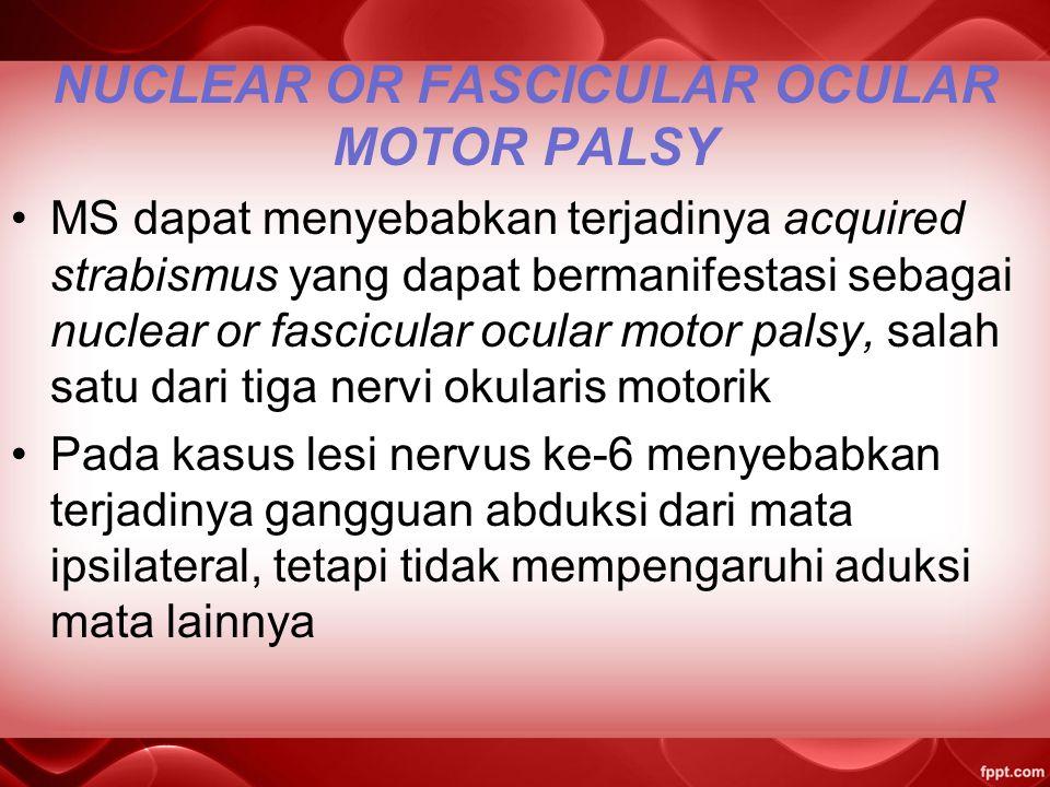 NUCLEAR OR FASCICULAR OCULAR MOTOR PALSY