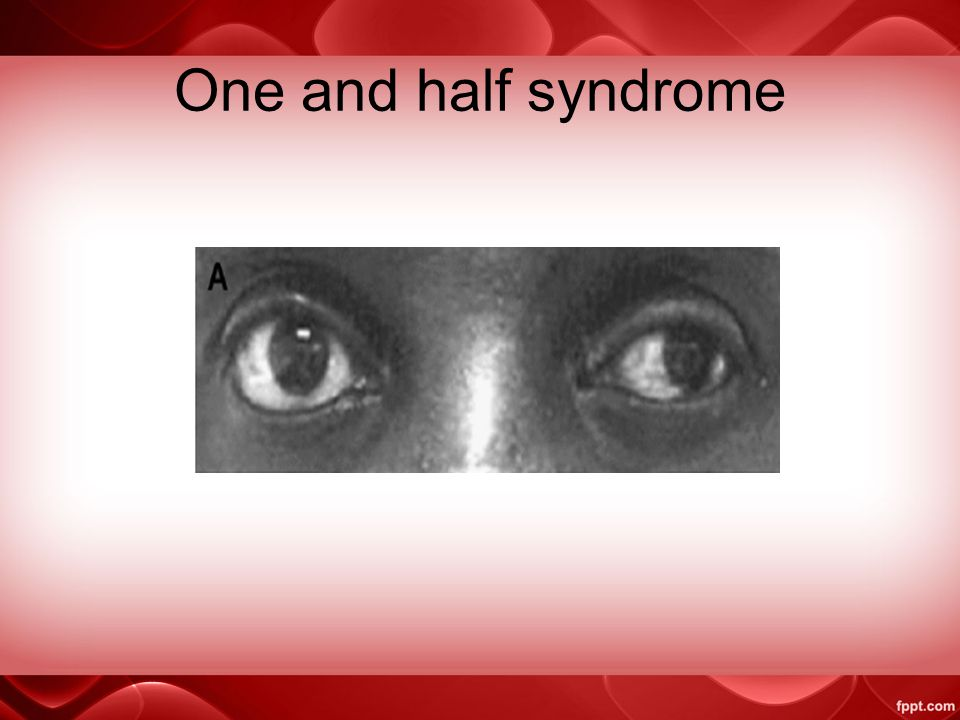 One and half syndrome