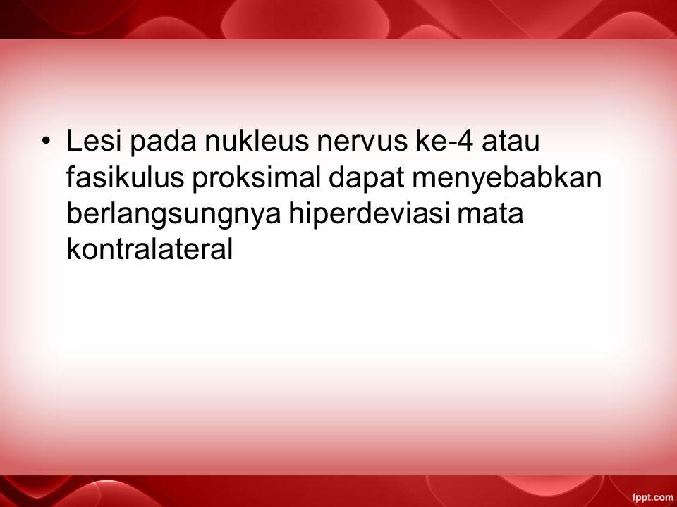 Lesi pada nukleus nervus ke-4 atau fasikulus proksimal dapat menyebabkan berlangsungnya hiperdeviasi mata kontralateral