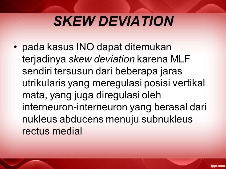SKEW DEVIATION