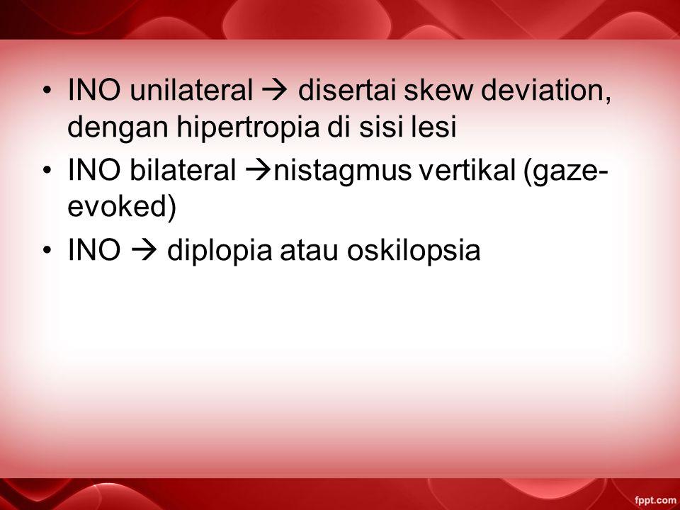 INO unilateral  disertai skew deviation, dengan hipertropia di sisi lesi