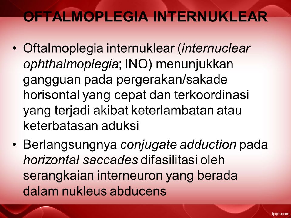 OFTALMOPLEGIA INTERNUKLEAR