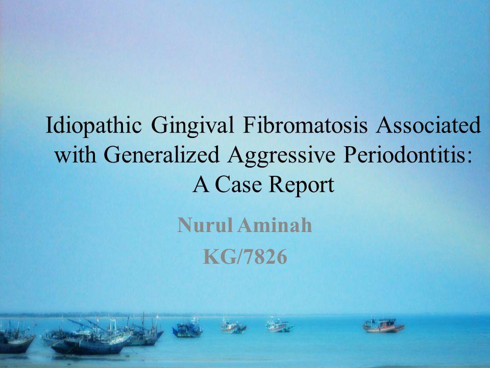 Idiopathic Gingival Fibromatosis Associated
