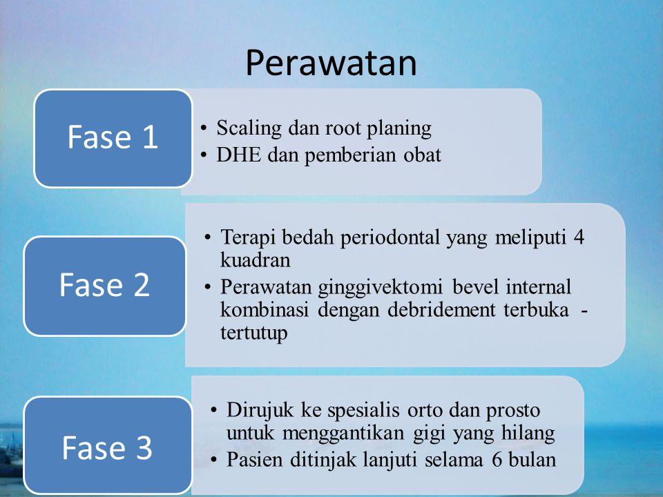 Perawatan Fase 1 Fase 2 Fase 3 Scaling dan root planing