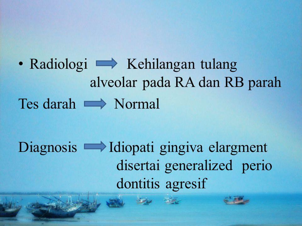 Radiologi Kehilangan tulang alveolar pada RA dan RB parah
