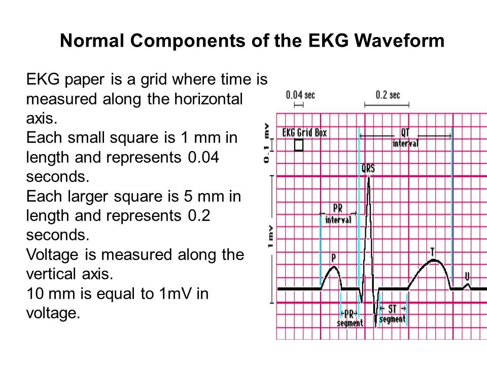 Normal Components of the EKG Waveform