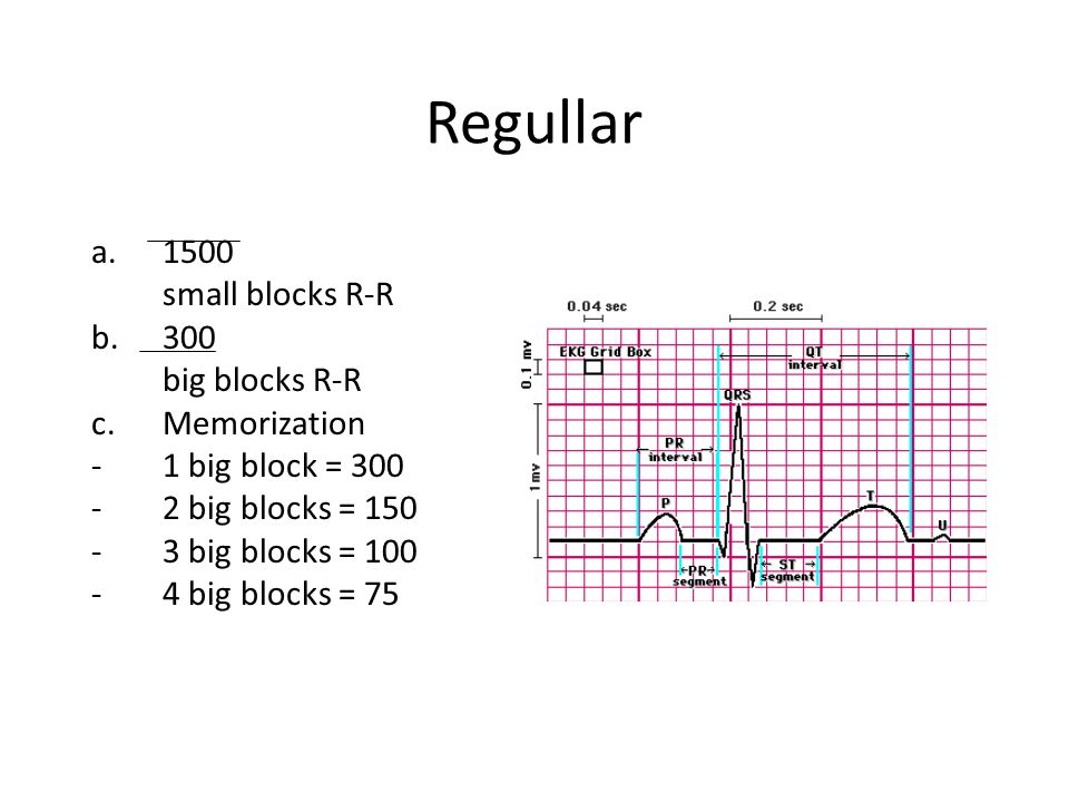 Regullar 1500 small blocks R-R 300 big blocks R-R Memorization