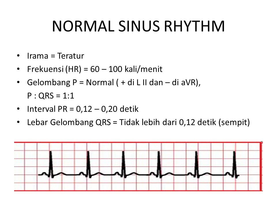 NORMAL SINUS RHYTHM Irama = Teratur