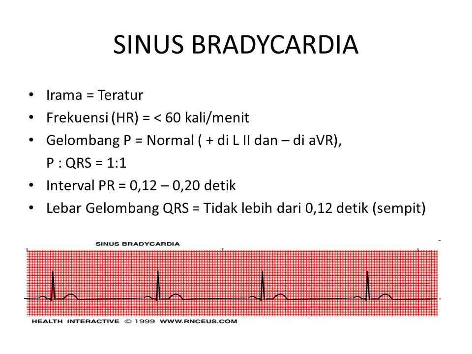 SINUS BRADYCARDIA Irama = Teratur Frekuensi (HR) = < 60 kali/menit