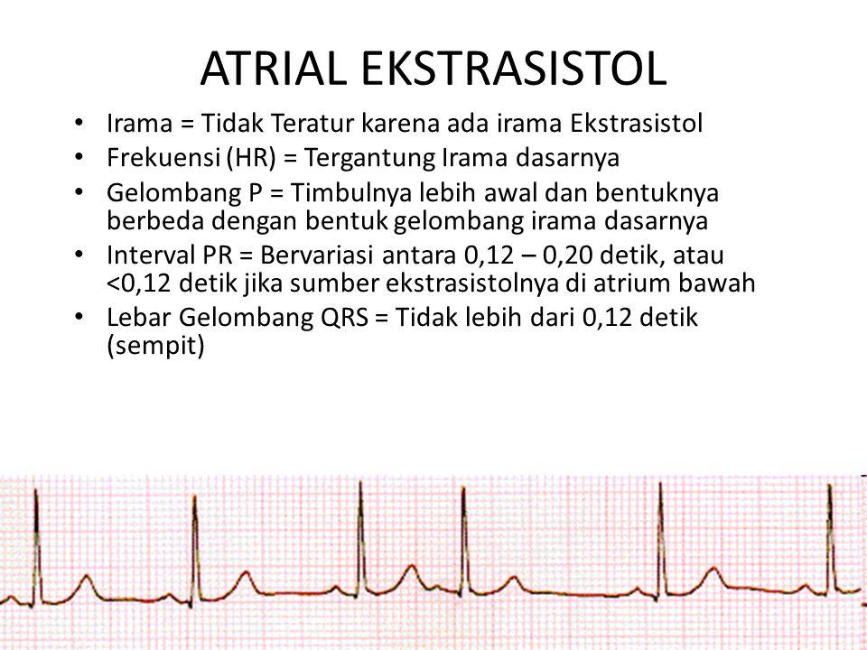 ATRIAL EKSTRASISTOL Irama = Tidak Teratur karena ada irama Ekstrasistol. Frekuensi (HR) = Tergantung Irama dasarnya.