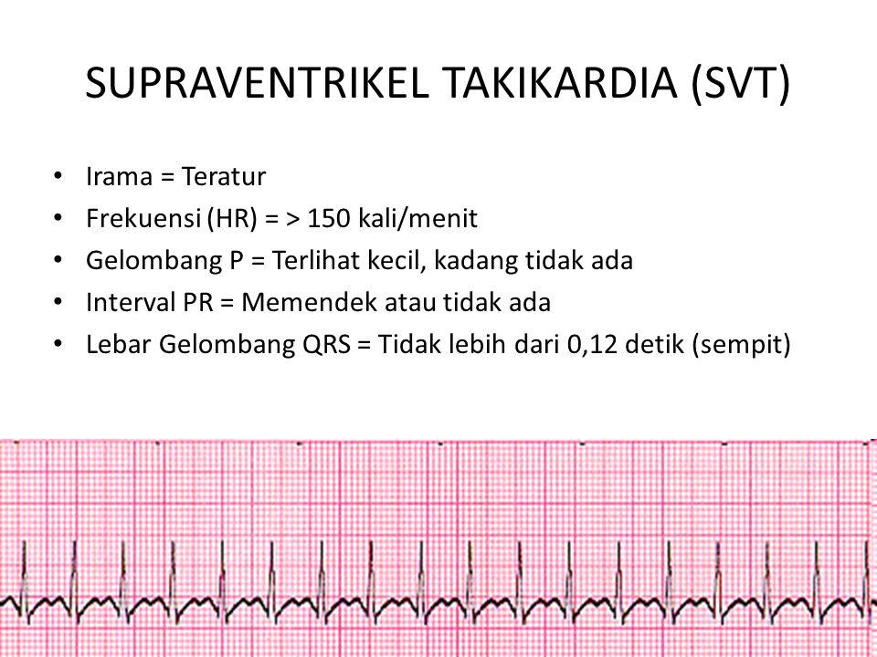 SUPRAVENTRIKEL TAKIKARDIA (SVT)