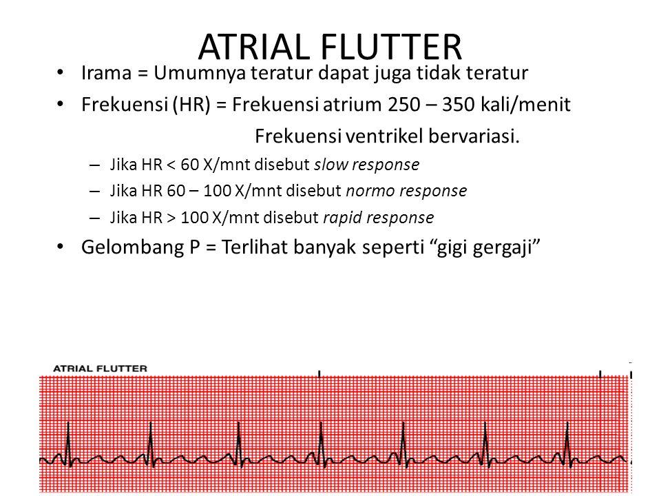 ATRIAL FLUTTER Irama = Umumnya teratur dapat juga tidak teratur
