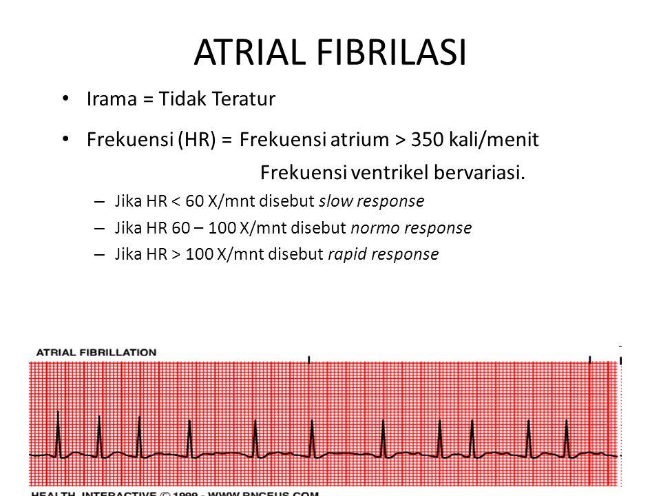 ATRIAL FIBRILASI Irama = Tidak Teratur
