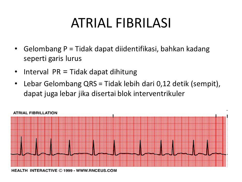 ATRIAL FIBRILASI Gelombang P = Tidak dapat diidentifikasi, bahkan kadang seperti garis lurus. Interval PR = Tidak dapat dihitung.