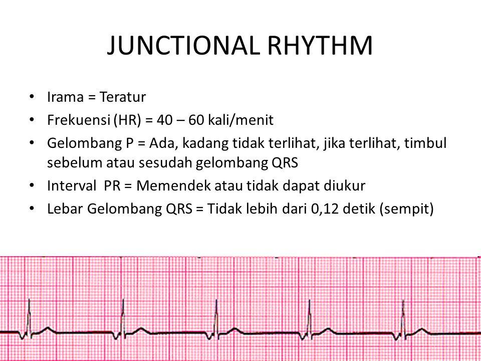 JUNCTIONAL RHYTHM Irama = Teratur Frekuensi (HR) = 40 – 60 kali/menit